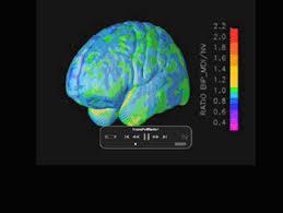 bipolar disorder brain
