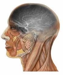 angiogram of brain