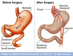 gastric bypass pictures