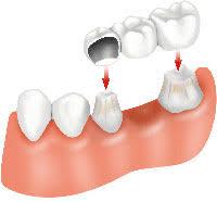 dental bridging