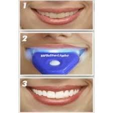 blanqueado dental