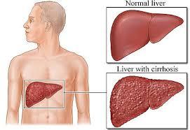 hepatitis b patients