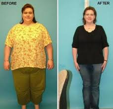 gastric bypass before and after picture