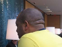 head fat