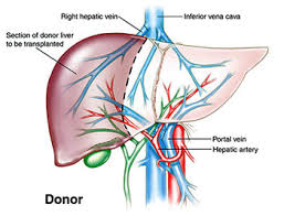liver transplant recipient
