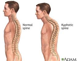 curving of the spine