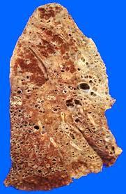 fibrotic lung
