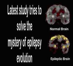 epilepsy brain pictures