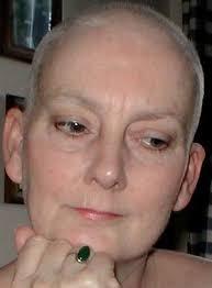 alopecia chemotherapy