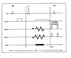 mri pulse sequences