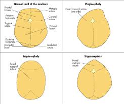 infants head shape