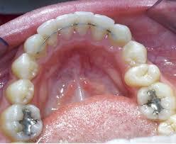 orthodontics retainer