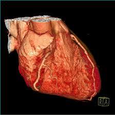 cardiothoracic imaging