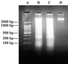 electrophoresis of dna
