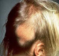 pictures of alopecia areata