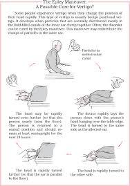 epley procedure
