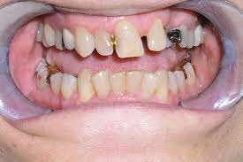 extreme makeover teeth