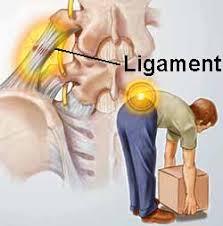 lumbar sprain