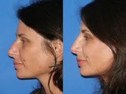 nose straightening