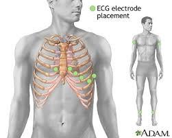 heart electrodes