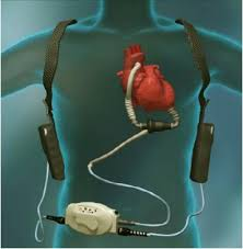 left ventricle assist device