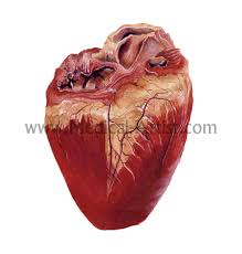medical heart pictures