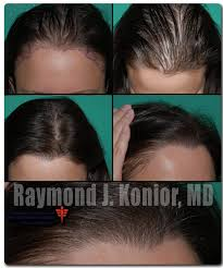women hair transplants
