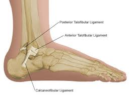 high ankle