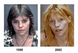 crystal meth pictures
