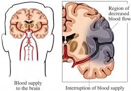head stroke