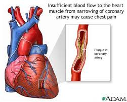 angina pictures