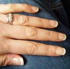 false nail