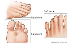 corn on a foot