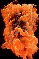 bolivian hemorrhagic fever