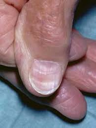 longitudinal nail ridges