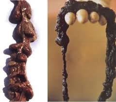 colon mucus