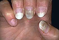 cuticle peeling