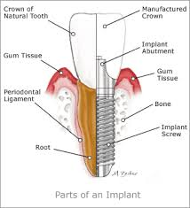 dental pictures