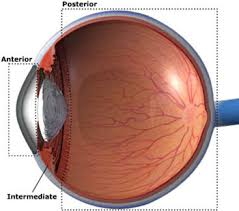 picture of uveitis
