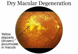 dry age related macular degeneration