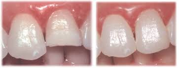 composite teeth