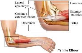 lateral epicondyle elbow
