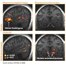 alcoholism and brain