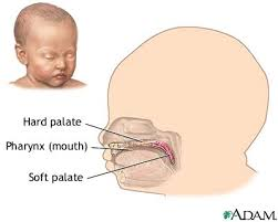pictures cleft lip