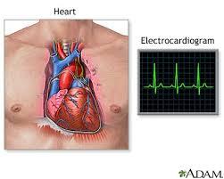 ecg electrocardiograph