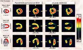 myocardial perfusion study
