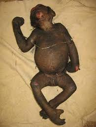 babies death