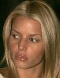 collagen lip enhancement