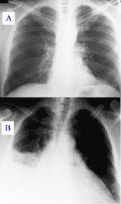 chest x ray of pneumonia