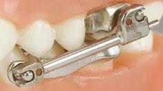 herbst orthodontic appliance
